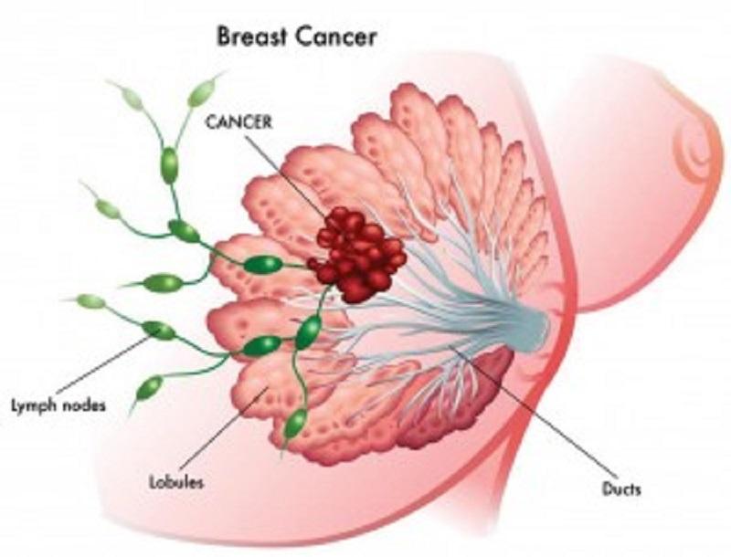 स्तन क्यान्सर पत्ता लगाउने मेमोग्राम मेसिन सञ्चालनमा